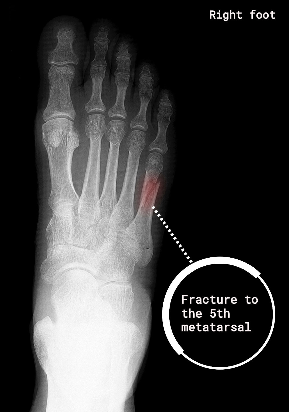 fracture_to_the_5th_metatarsal_football4football_injury_section